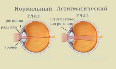 Магазин очков для зрения уфа